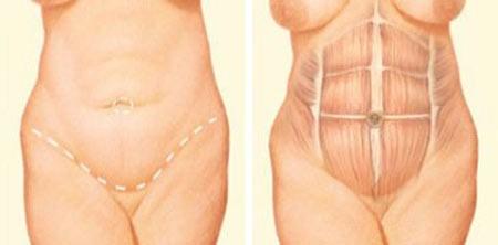 مراحل عمل زیبایی شکم یا ابدومینوپلاستی