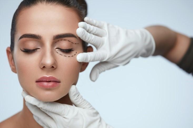 بلفاروپلاستی یا جراحی زیبایی چشم
