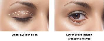 اهداف عمل زیبایی چشم