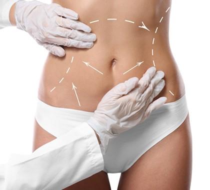 جراحی زیبایی شکم یا ابدومینوپلاستی