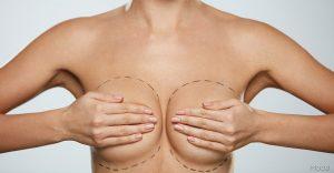 جراحی زیبایی سینه یا پروتز سینه