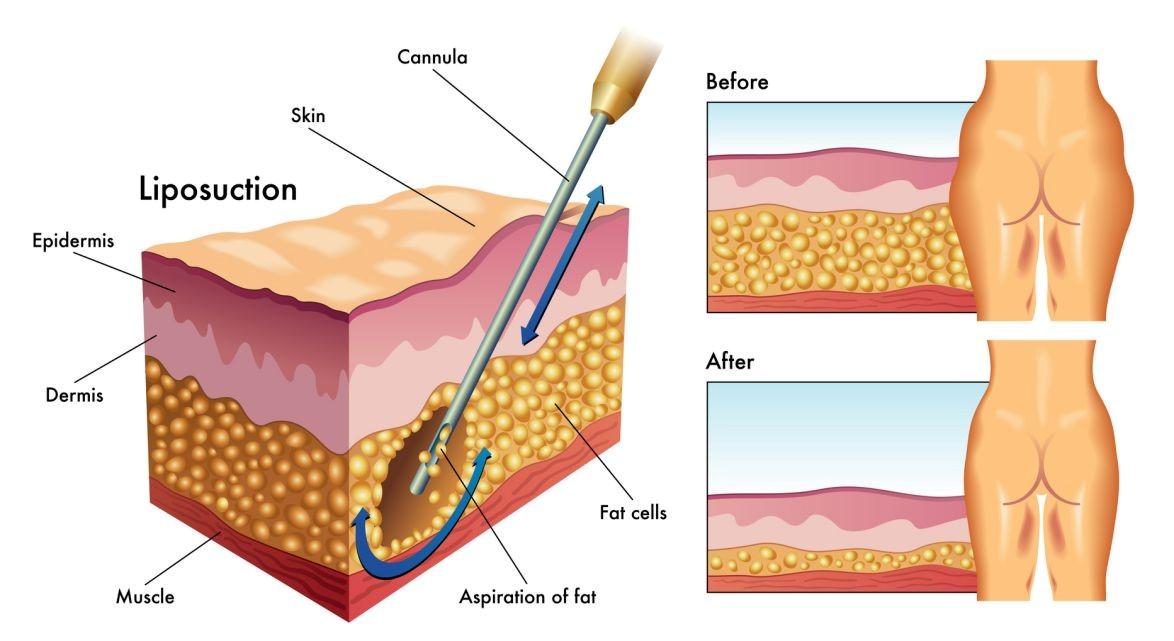 لیپوساکشن چیست