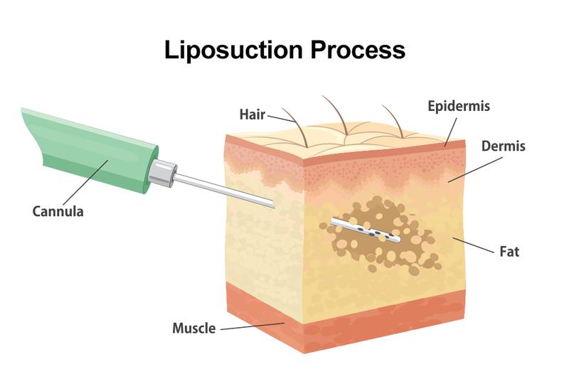 لیپوساکشن به چه افرادی توصیه نمی شود