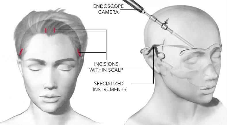 انواع جراحی به روش لیفتینگ ابرو