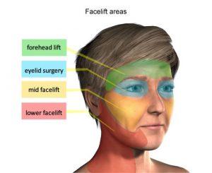 بهبود سریعتر در جراحی لیفتیگ صورت