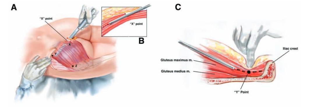 مراحل جراحی زیبایی باسن