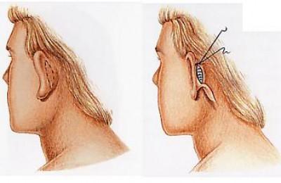 مراحل انجام جراحی اتوپلاستی
