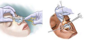 انواع عمل جراحی زیبایی بینی