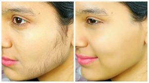 لیزر موهای زائد قبل و بعد
