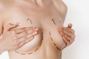 جراحی لیفت سینه