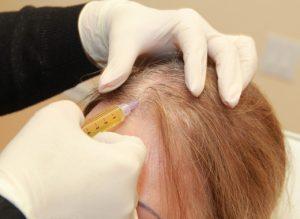 مراقبت های پس از مزوتراپی مو