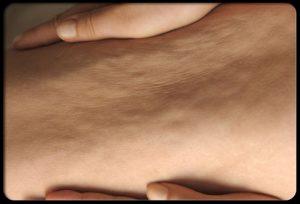 استفاده از لیزر برای درمان سلولیت