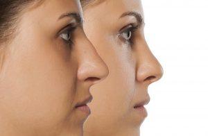 سؤالات متداول در مورد جراحی زیبایی بینی