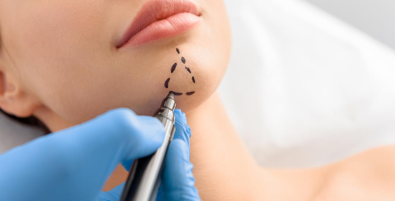 جراحی کاشت چانه: نکاتی درباره قبل و بعد از عمل