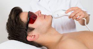 سؤالات متداول پرسیده شده درمورد لیزر مو