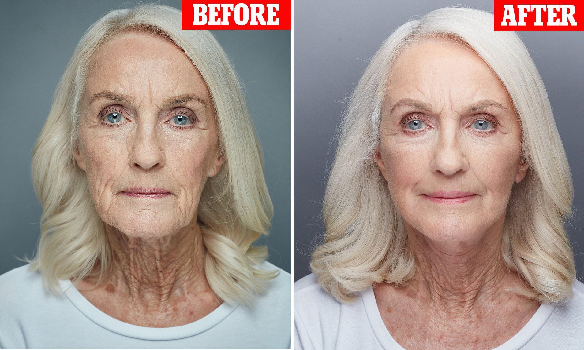 روش های لیفت گردن و صورت